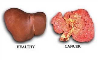 Kanker Hati : Definisi, Penyebab, Diagnosis & Penatalaksanaan